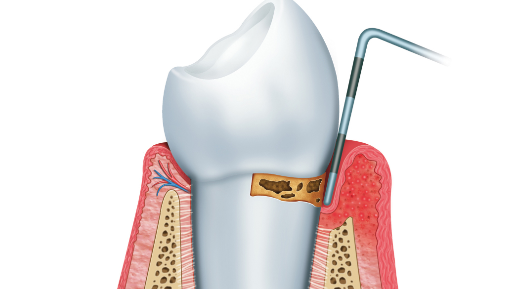 What is Gingivitis - Tippin Dental Group