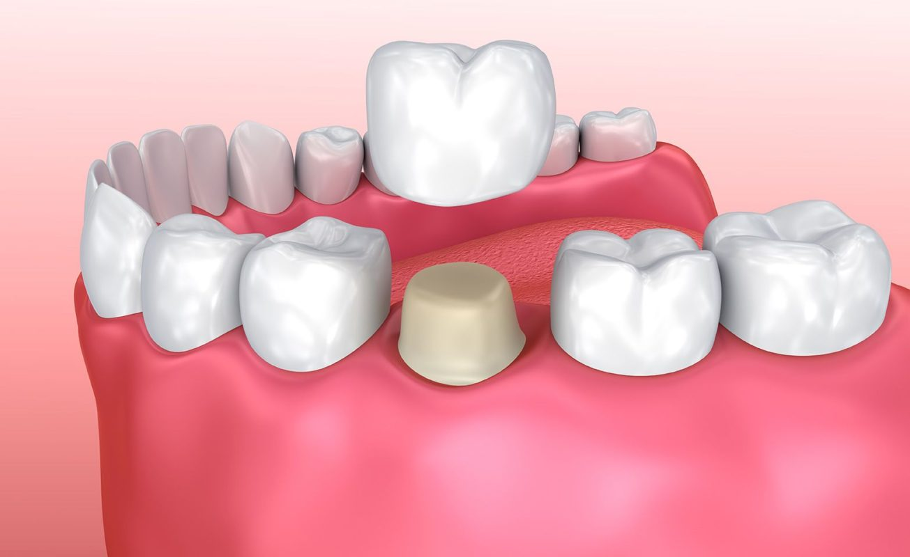 Rockwall Porcelain Crowns & Veneers