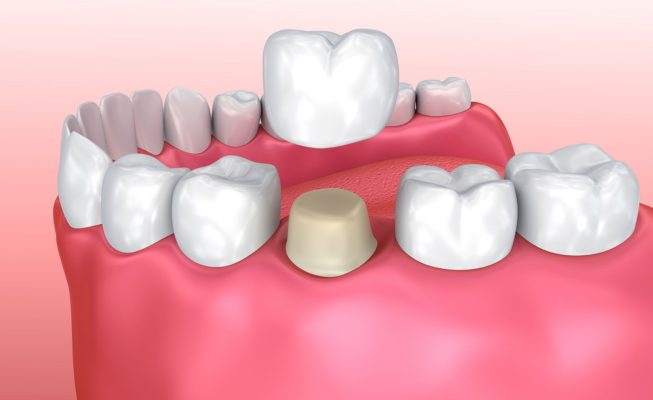All about Porcelain Crowns Featured Image - Tippin Dental Group