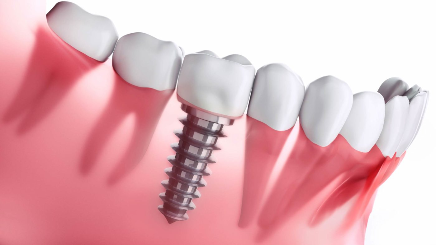 How Do Dental Implants Work Featured Image - Tippin Dental Group